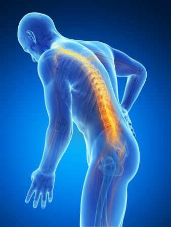 How Much Compensation Can I Claim For a Spinal Injury