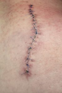 Scar Injury Claims
