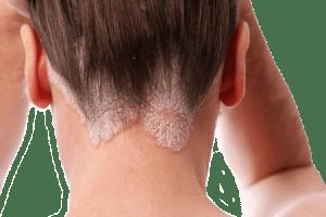 Hair Salon Bleach Burn
