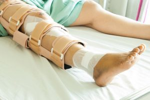 70,000 Compensation For Broken Femur And Other Injuries - Free Legal