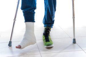 broken foot bone