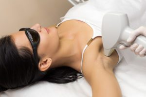 laser hair removal burns on arms