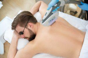 laser hair removal burn on back