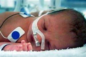 Childbirth brain injury
