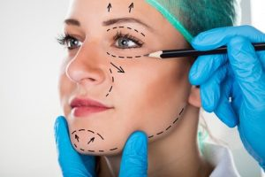 facelift injury negligence and facelift negligence claims