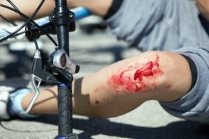 what to do if you have a cycle accident