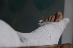 broken leg compensation